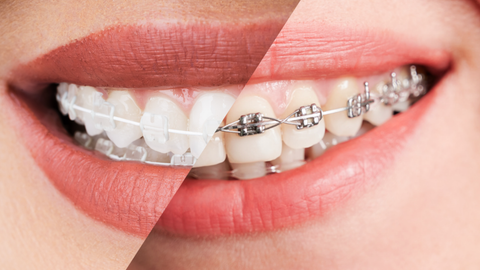 Which is Better: Metal Braces or Ceramic Braces