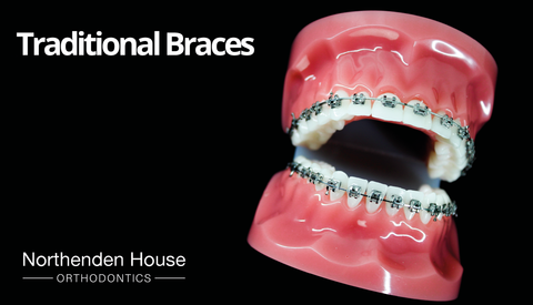 5 Things you need to know before metal braces