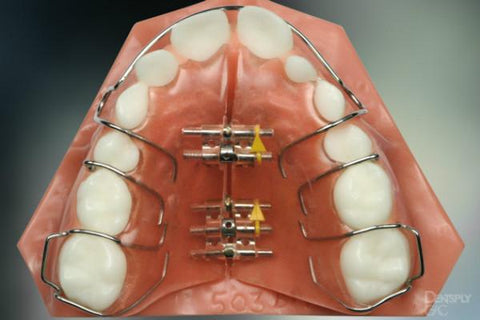 What are Functional braces?