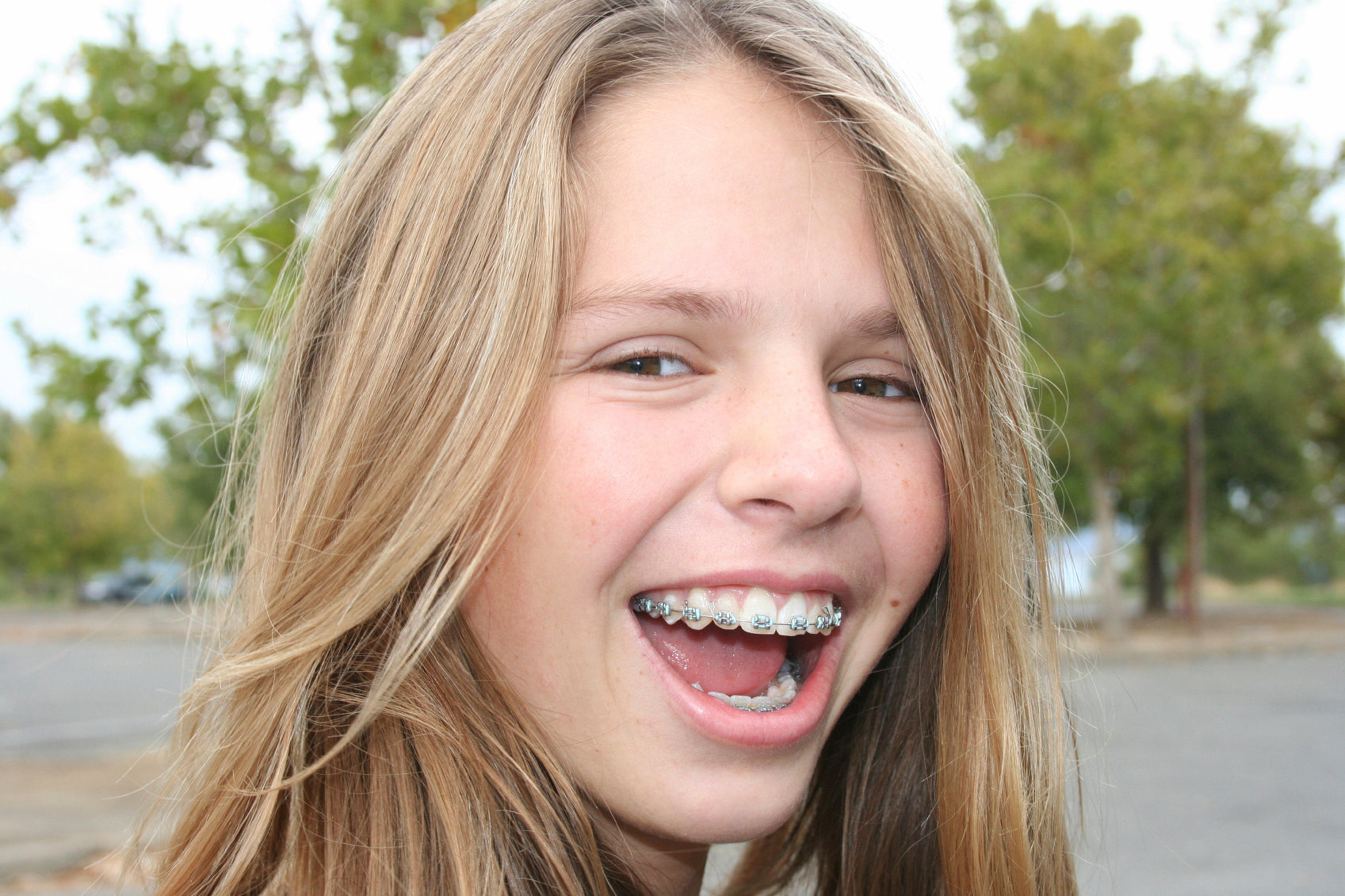 Top tips for when you first get dental braces