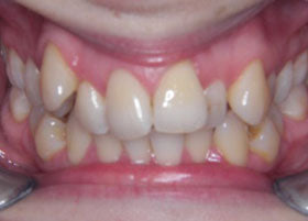 Case 1 before