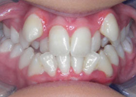 Case 2 before