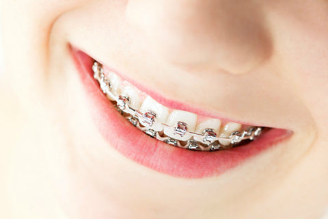 What Are the Long Term Benefits of Introducing Orthodontics From an Early Age?