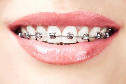 fixed braces | Manchester Orthodontics