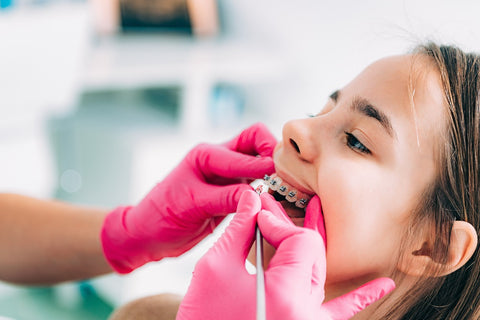 What are the benefits of getting braces as a child?
