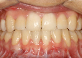 Orthognathic Case Studies | Manchester Orthodontics