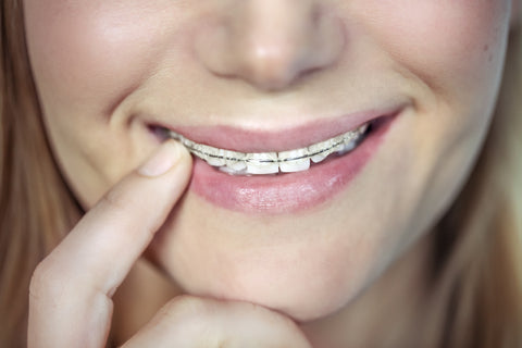 Ceramic Braces Pros And Cons Manchester Orthodontics