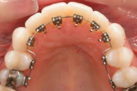 Brace Care Top Tips | Northenden Orthodontics