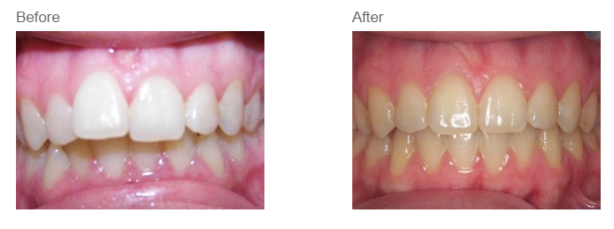 What results to expect from orthodontic treatment