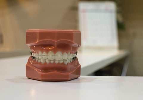 brace care | Manchester Orthodontics