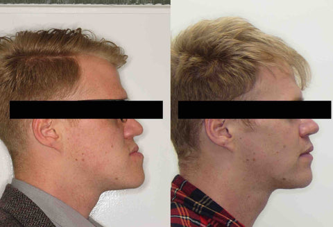 Jaw Surgery Recovery | Manchester Orthodontics