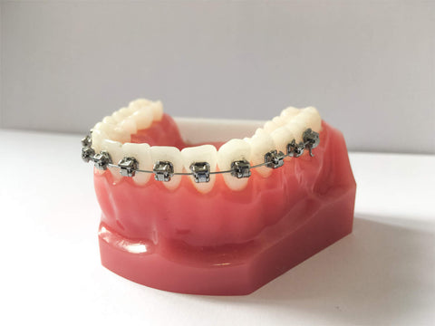Self Ligating Braces | Manchester Orthodontics