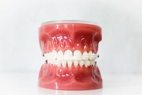 Ceramic Braces | Manchester Orthodontics
