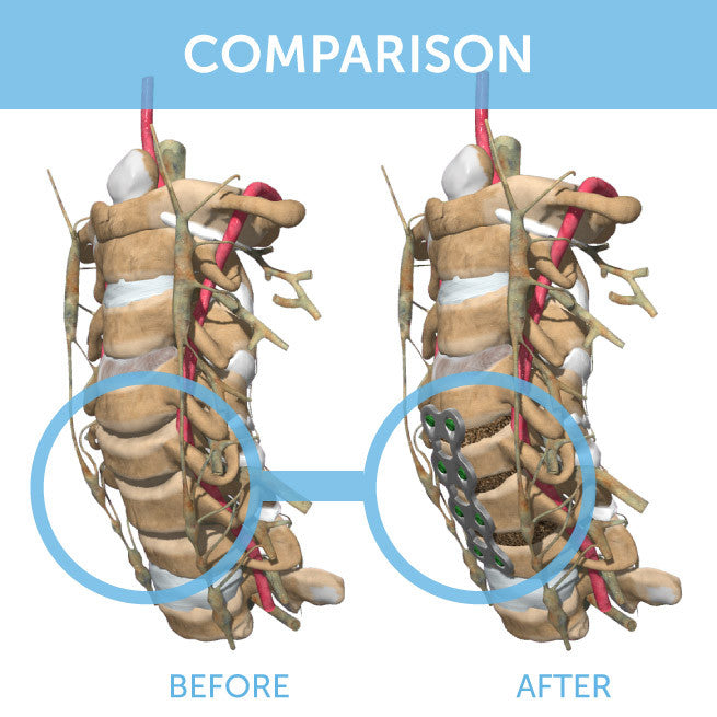 OrthoClick® Comparison Package