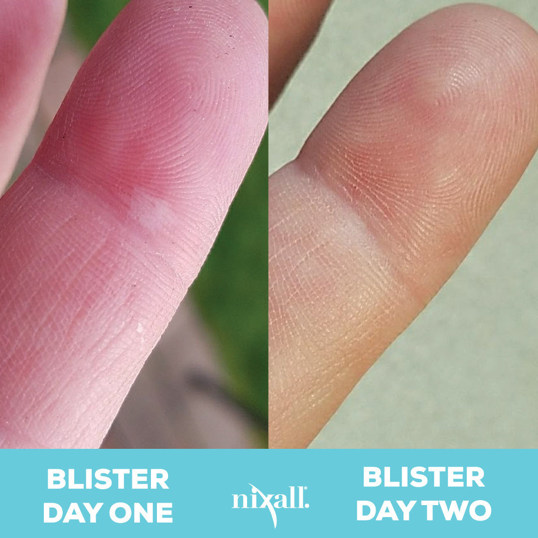 Nixall First Aid Blister