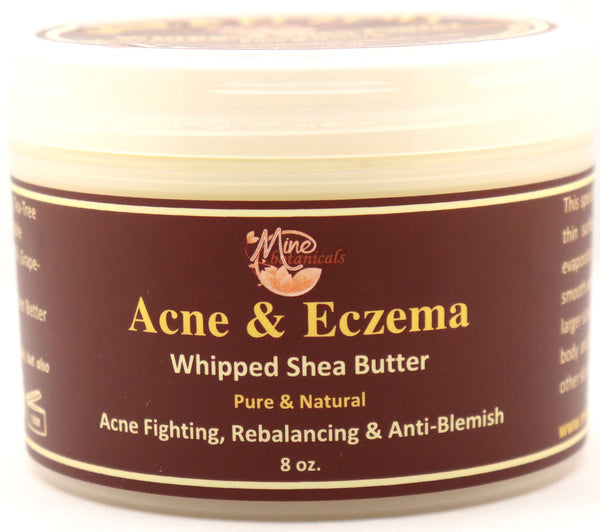 Acne & Eczema - Whipped Shea Butter