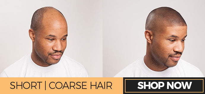 receding hairline quick fix