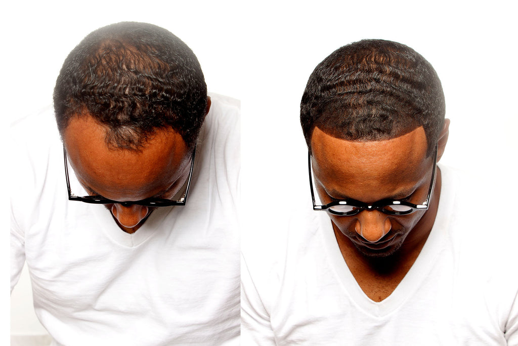 Advanced Hairline & Beard Kit
