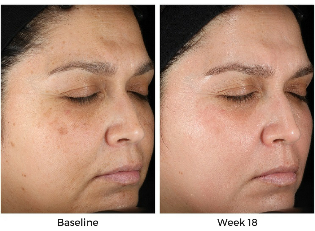 Obagi Nu-Derm Before and After