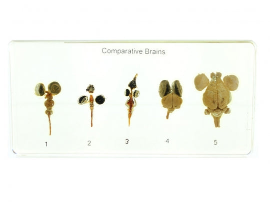 Comparative Brain Specimens