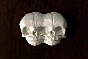 Conjoined Twins Bone Magnet