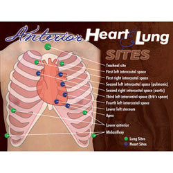 Anterior Heart & Lung Sites Poster