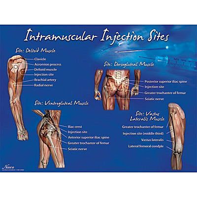 Intramuscular Injection Sites Set