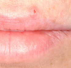 Pictures of Canker Sores and Pictures of Cold Sores
