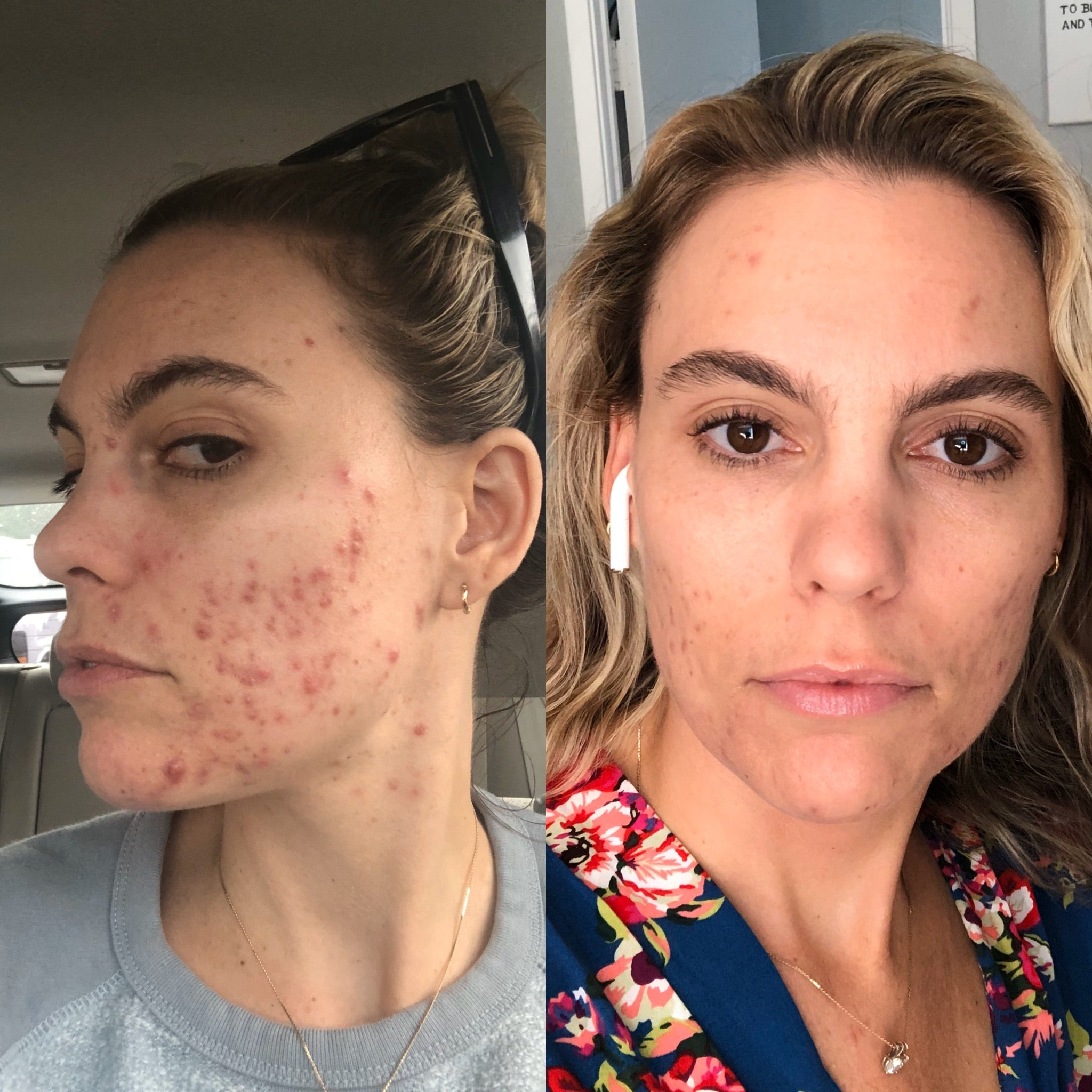 How I Got Rid of my Cystic Acne without Rx