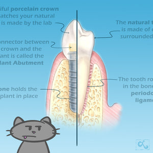 Illustrations for a Dental Implant Booklet