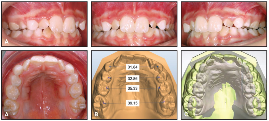 Evolution of the Leaf Expander: A Maxillary Self Expander – DB