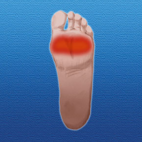 Ball of Foot Pain   Fat Pad Atrophy - Silipos