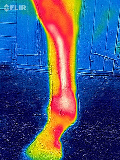 Hands v's Thermography