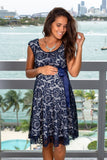 Navy and White Lace Short Dress