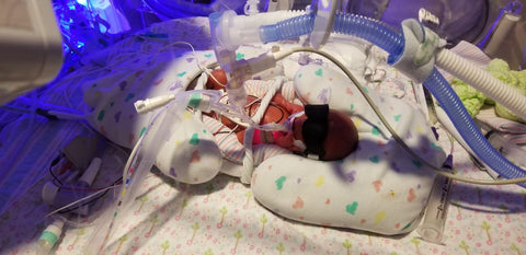 24 week old Lily lays in a blanket with tubes and medical devices attached to her