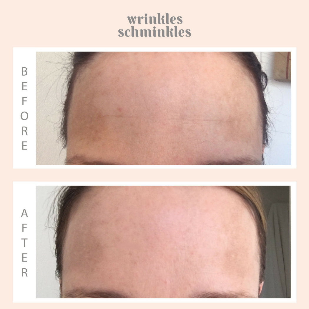 Forehead Smoothing Kit