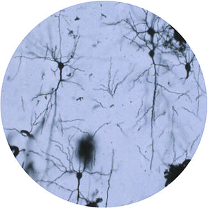 Neuron - Giant Microbe