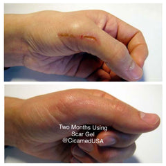 Hand scar from injury. Best scar gel for injury and burn removal. painlessly get rid of scars.