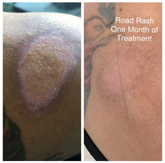 Cycling road rash injury scar. Get rid of scars naturally.