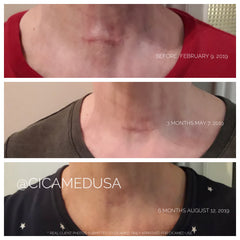 Cicamed Scar cream is the best drugstore brand for afforable post surgery scar removal