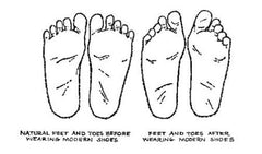 Damaging effects of improper footwear over time.