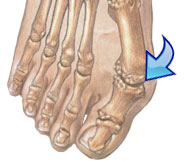 bunions-helped-wide-toe-box-shoes-foot-health