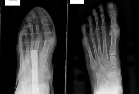 Shoes with tapering toe boxes can cause foot deformities like bunions and hammertoes.