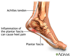 plantar-fasciitis-is-affected-by-footwear