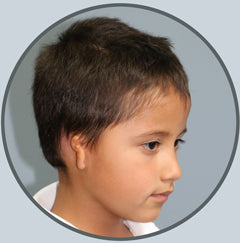 501c3 nonprofit Developing Faces ear microtia