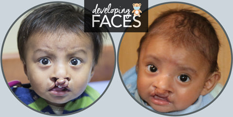 developing faces Guatemala patients