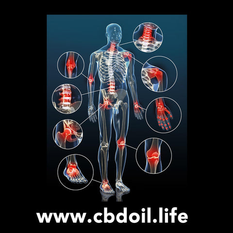 It's been said that inflammation is the root cause of many diseases/disorders. If people can reduce the inflammation, a lot of the pain and discomfort they are experiencing from a variety of issues likely will diminish or completely resolve.  CBD, or Cannabidiol, has been shown to help inflammation.  See more from That's Natural at www.cbdoil.life and @cbdhempoil and soon find us in the #Aspen Valley at our new retail store @thatsnatural #Basalt #inflammation #holistic #healing #essentialoils #wellnessjourney #wellness #sports #sportsmedicine #ThatsNatural