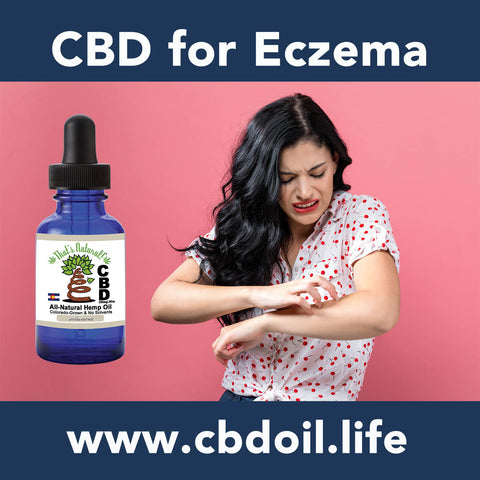 CBD for eczema - CBDA, CBDA Oil, CBDA creme, CBDA cream, CBDA for pain, CBDA for anxiety - That's Natural full spectrum CBD oil products with cannabinoids and terpenes - experience the entourage effect with Thats Natural CBD Oil, legal hemp CBD, hemp legal in all 50 States, CBD, CBDA, CBC, CBG, CBN, Cannabidiol, Cannabidiolic Acid, Cannabichromene, Cannabigerol, Cannabinol; beta-myrcene, linalool, d-limonene, alpha-pinene, humulene, beta-caryophyllene - find at cbdoil.life and www.cbdoil.life
