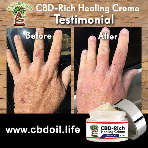Testimonial for That's Natural CBD Oil - CBD-Rich Healing Creme for skin care and skin health - see more at www.cbdoil.life