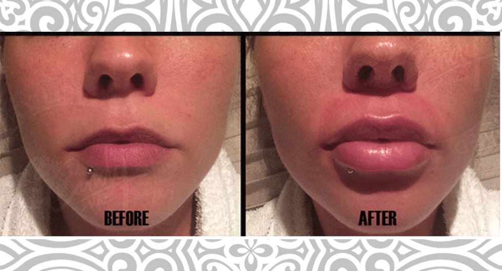 How To Get Fuller Lips Naturally At Home